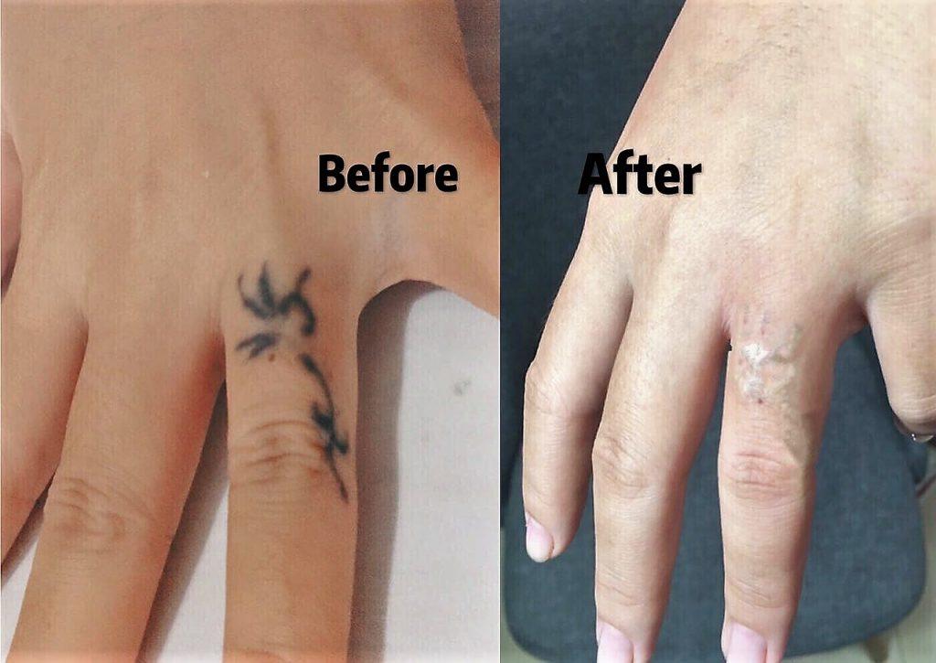 Tattoo Removal Shadow Show Tattoo